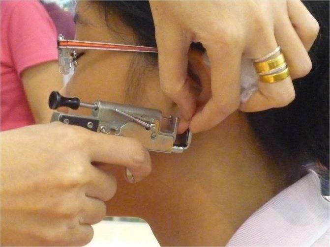 Сколько заживают уши после прокола — особенности, рекомендации и отзывы