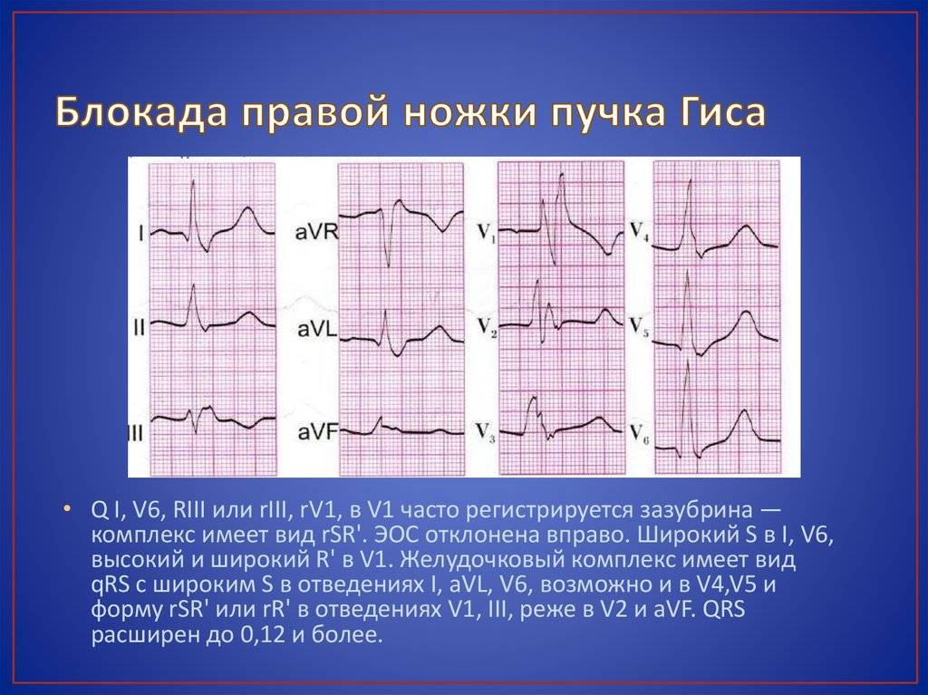Сердечные блокады, лечение сердечных блокад в москве