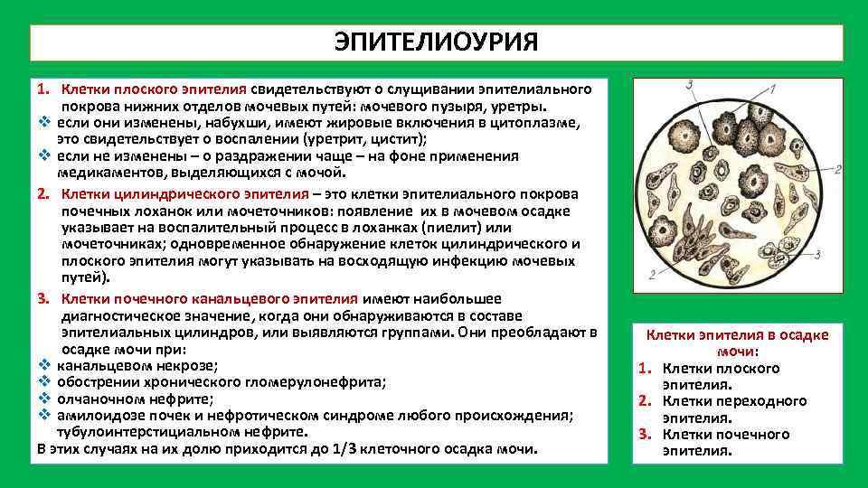 Эпителий (плоский, переходный, почечный) в моче у ребенка (грудничка, подростка): норма, повышенный, анализы, причины отклонений, лечение | narod-metod.ru