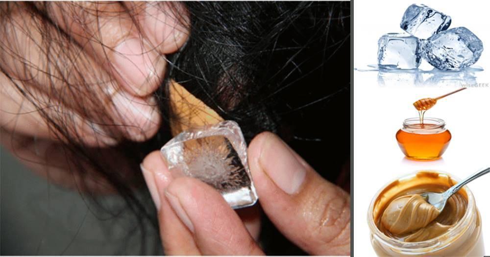Как убрать жвачку с волос: как вытащить, снять, отлепить, удалить, достать жевательную резинку у ребенка, девочки, что делать, все методы