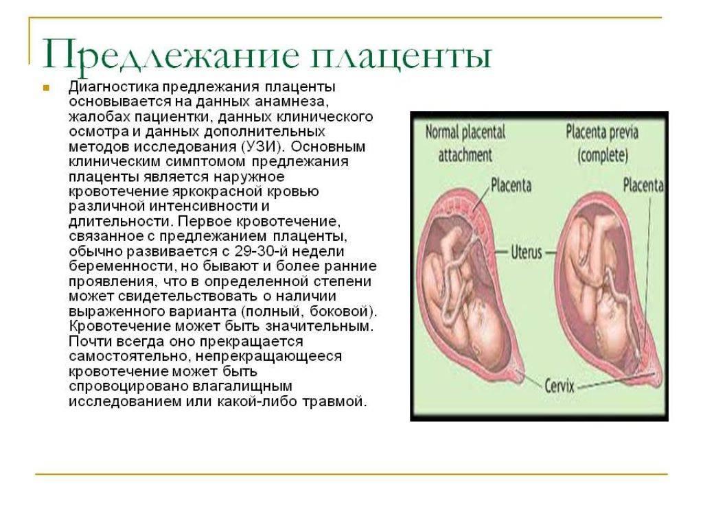 Предлежание плаценты. низкая плацентация