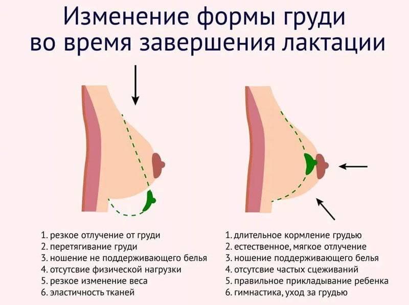 Современные способы подтяжки груди