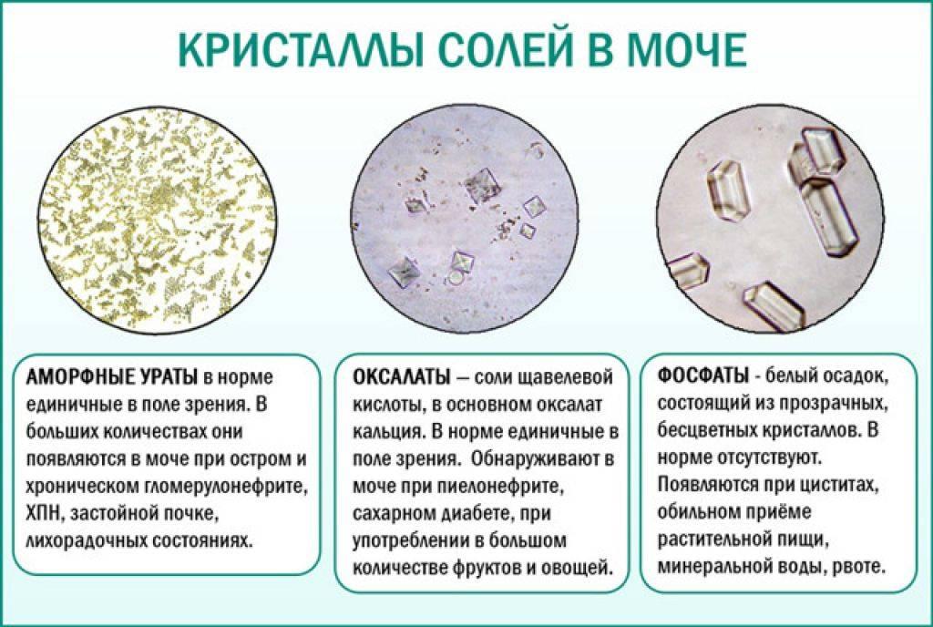 Дисметоболические нефропатии у детей, виды, методы лечения