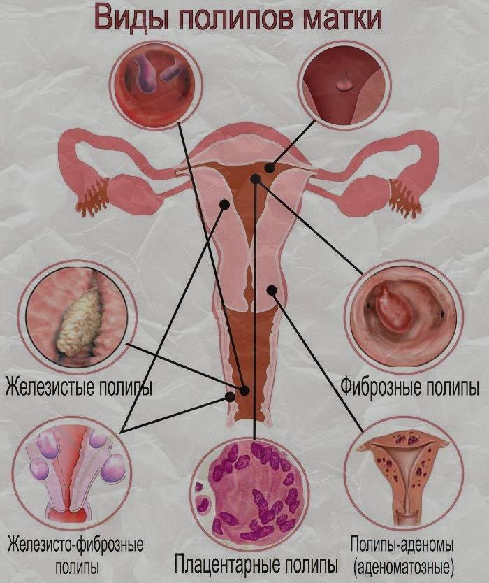 Межменструальные кровотечения и месячные в середине цикла