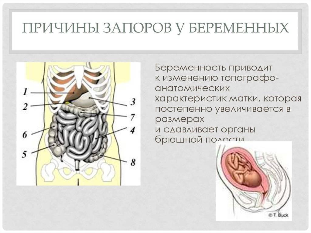 Артриты при хронических заболеваниях кишечника