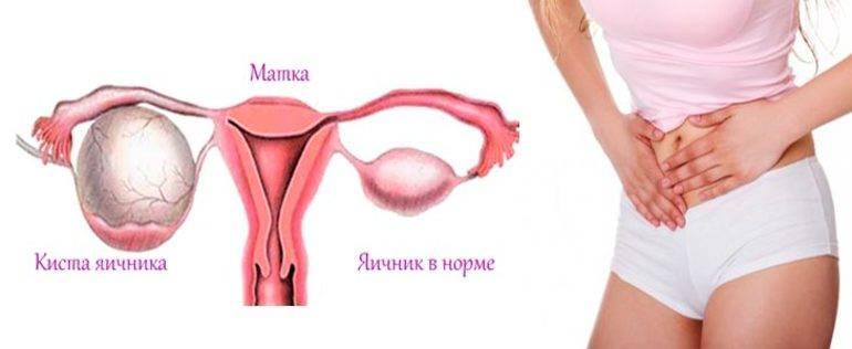 Почему болят яичники (правый, левый) и что делать?