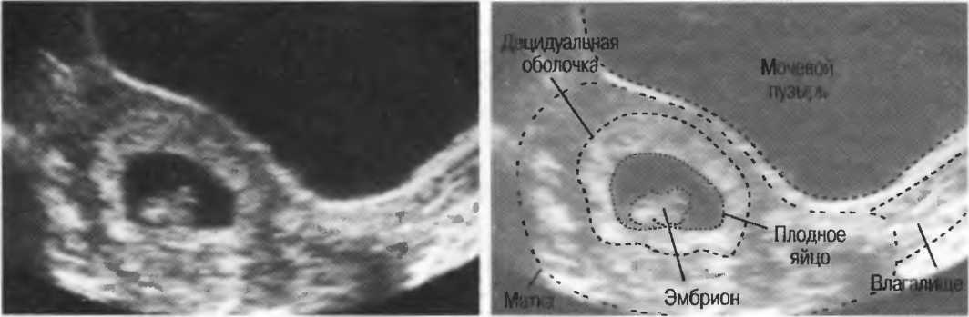 Неразвивающаяся  беременность - симптомы болезни, профилактика и лечение неразвивающейся беременности, причины заболевания и его диагностика на eurolab