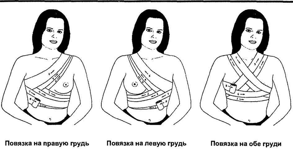 Как перевязать. как правильно перетянуть грудное молоко для предотвращения лактации