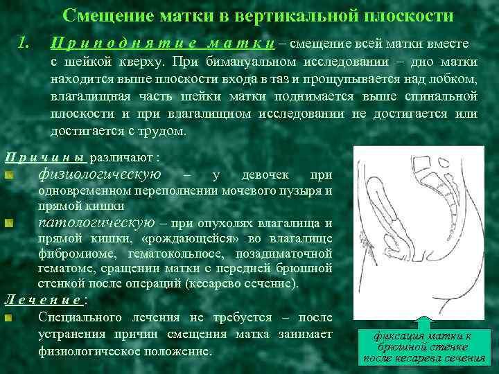 Влагалищные пессарии и кольца для лечения опущения матки и влагалища