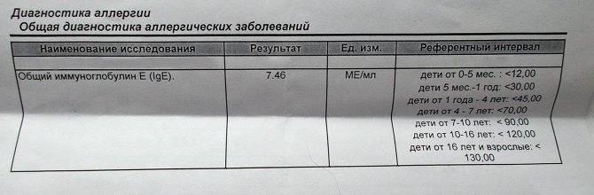 Ige общий (иммуноглобулин е общий)