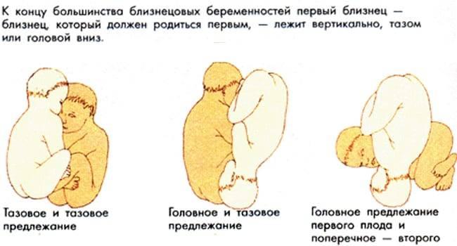 На каком сроке ребенок переворачивается вниз головой и принимает окончательное положение? | плод | vpolozhenii.com