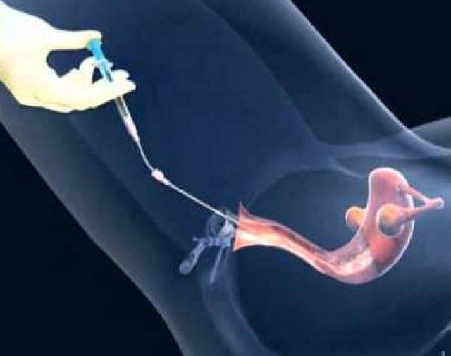 Как вести себя после переноса эмбрионов: подробная инструкция для будущих мам