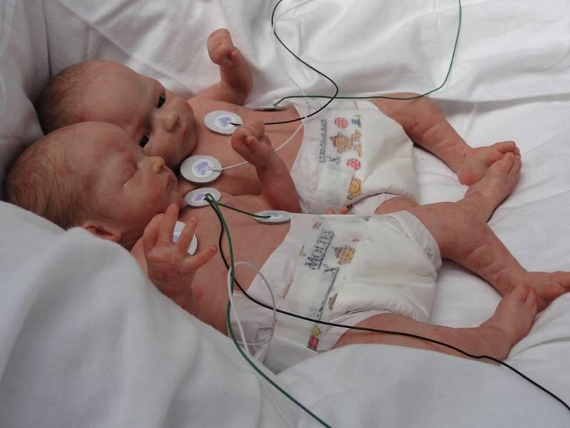 На каком сроке рождение ребенка. ожидание двойни: сроки вынашивания многоплодной беременности. во время родов
