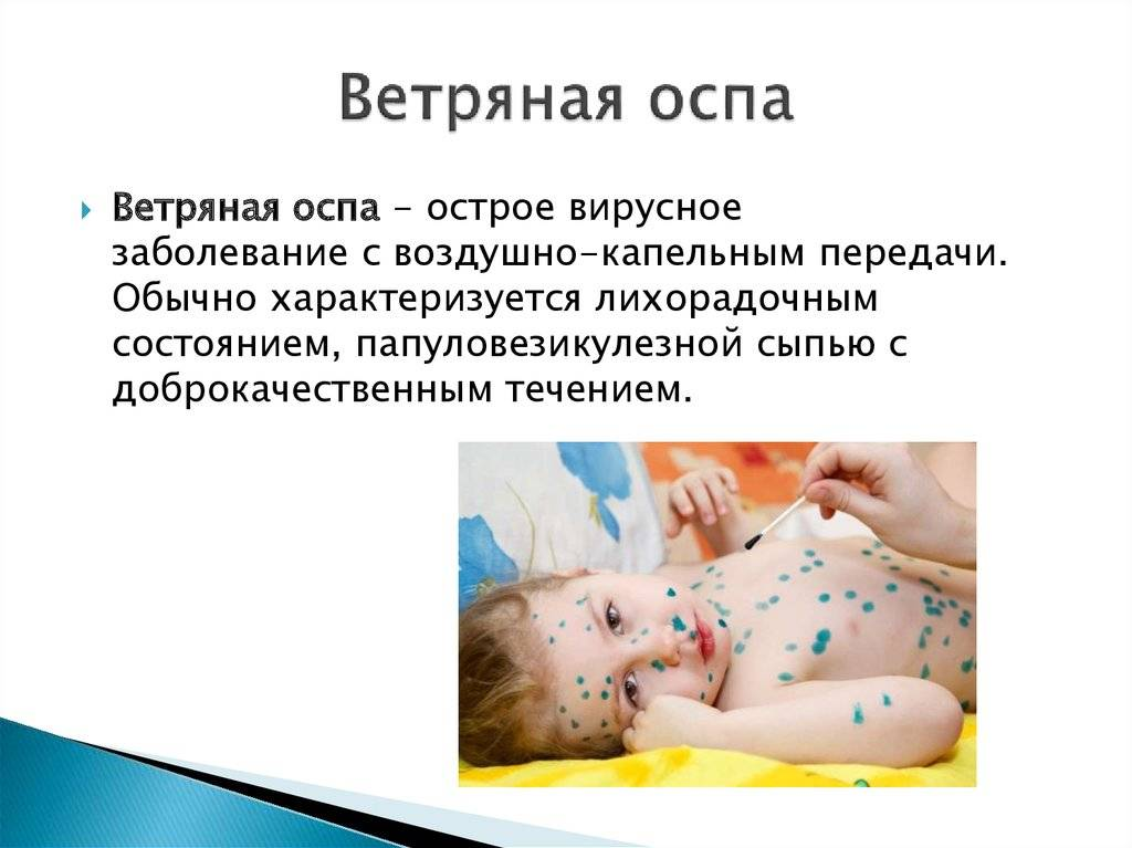 Скарлатина у детей, взрослых: симптомы, лечение, профилактика +фото - напоправку – напоправку