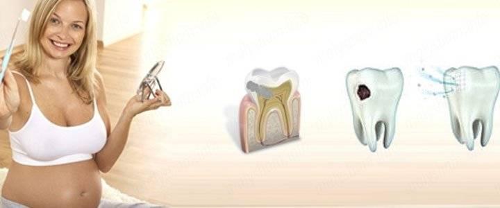 Лечение зубов во время беременности: за и против