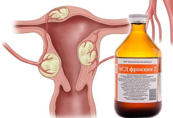 Лечение синдрома поликистозных яичников. спкя, спя