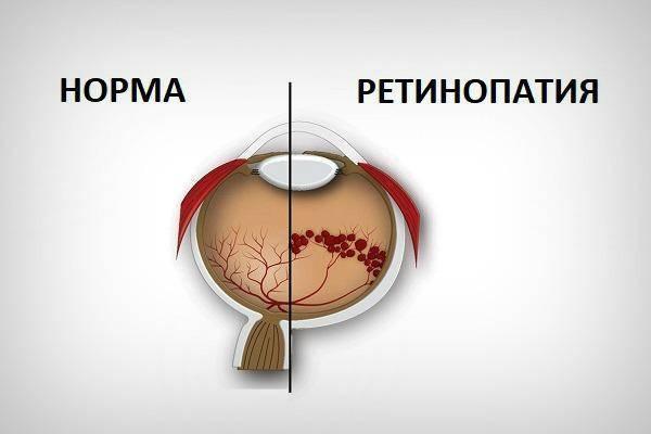 Осложнения ретинопатии недоношенных - энциклопедия ochkov.net