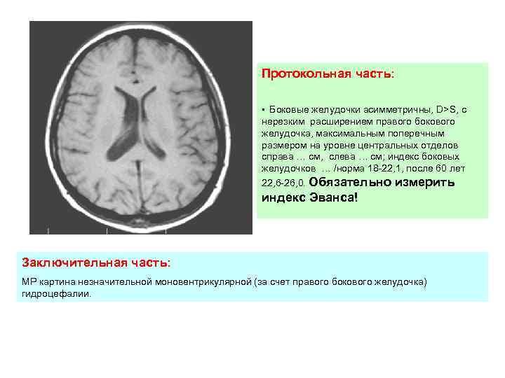 Опухоли 3 желудочка   нейродети