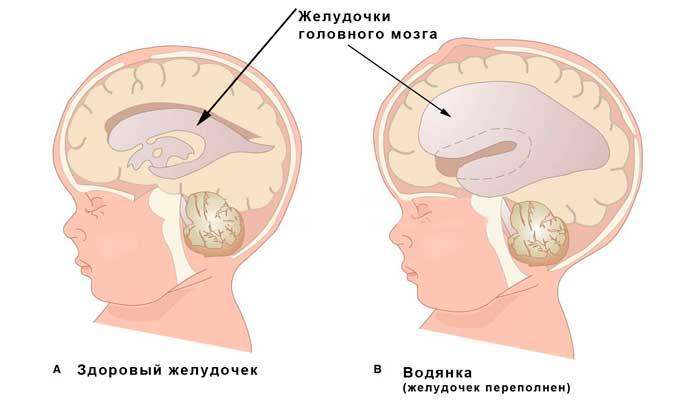 Увеличены желудочки головного мозга у грудничка: причины расширения у новорожденных, последствия, асимметрия и норма в таблице