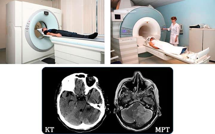 Мрт головного мозга ребенку цены в москве - сделать мрт головного мозга ребенку в центре «мы и дети»