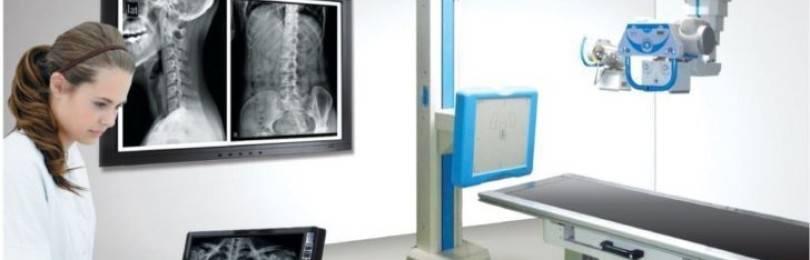 Флюорография при планировании беременности: через какое время можно