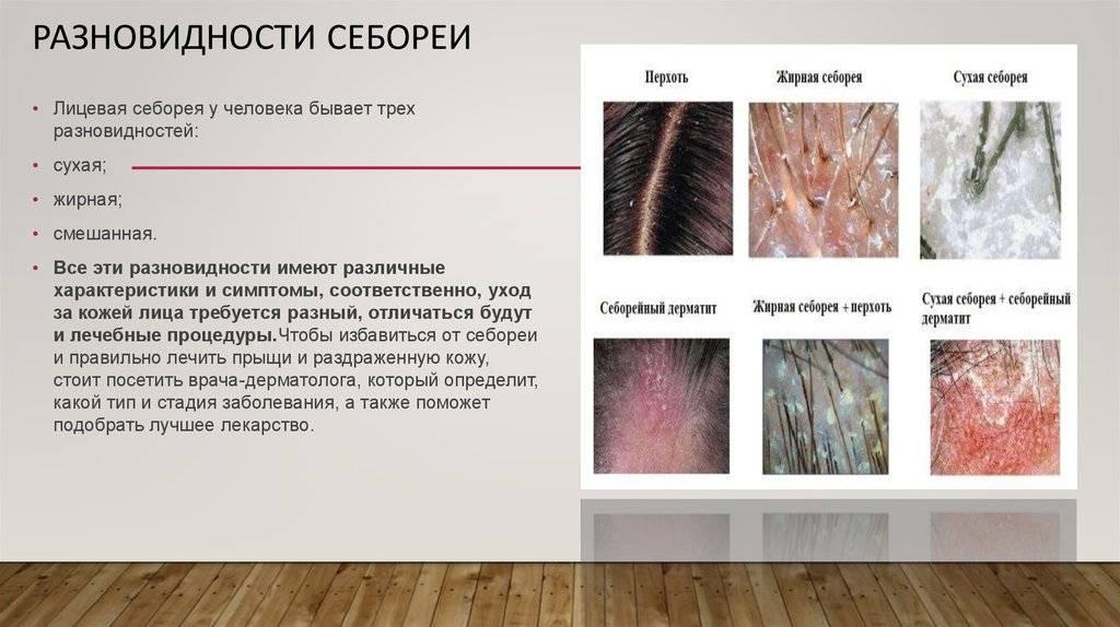 Грибок кожи головы – симптомы, лечение – как вылечить
