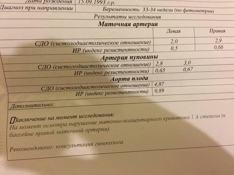 Допплерометрия