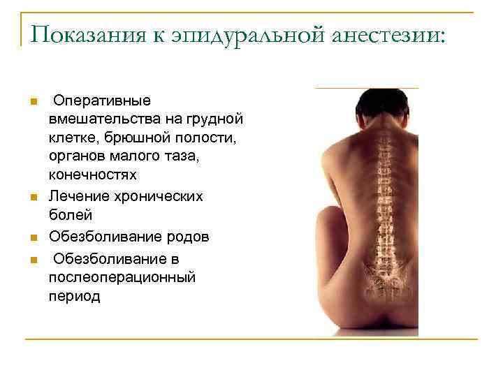 Девочки, у кого болела спина после эпидуральной анастезии??? - страна мам