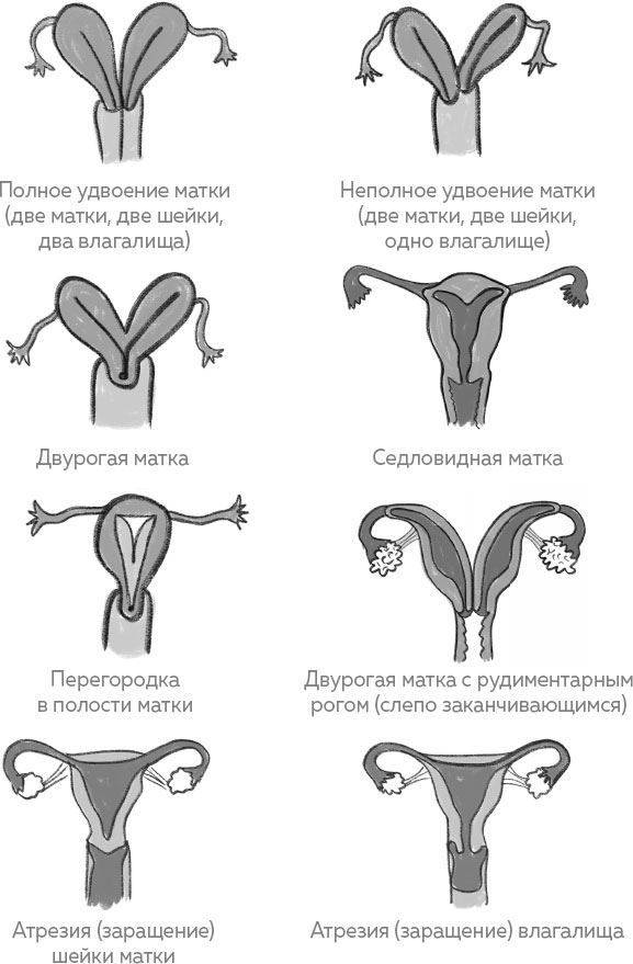 Седловидная матка: что это за патология и какие у нее последствия