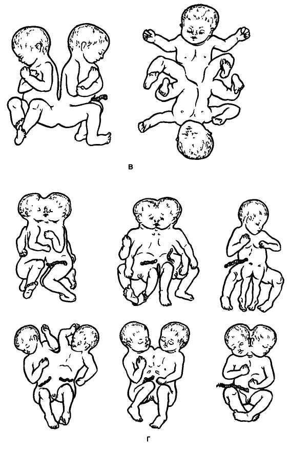 Редукция эмбриона при многоплодной беременности, саморедукция плода при двойне