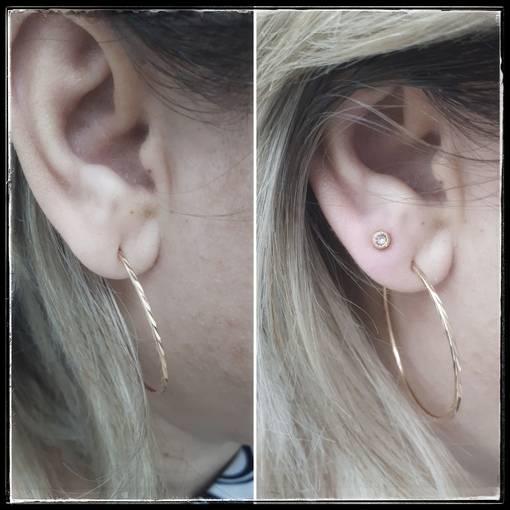 Не заживают уши после прокола у ребенка