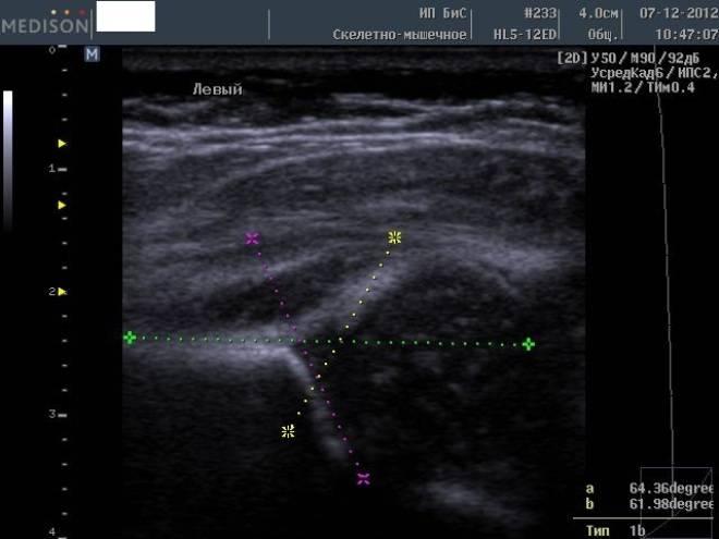 Узи тазобедренных суставов у новорожденных: расшифровка у грудничков, нормы углов в таблице