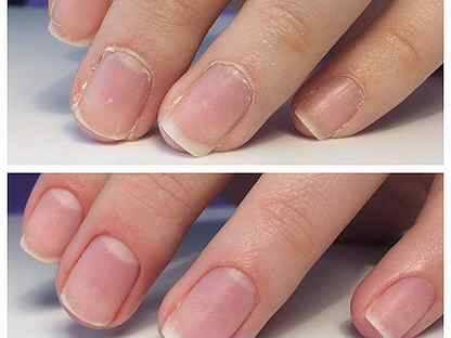 Можно ли во время беременности на ранних и поздних сроках делать маникюр гель-лаком и наращивать ногти?