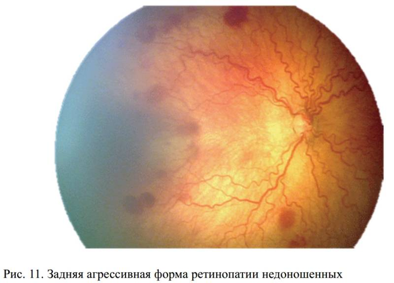 Задняя агрессивная ретинопатия у недоношенных младенцев