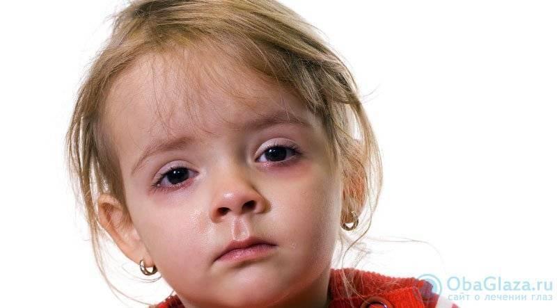 Причины пятен на языке у ребенка