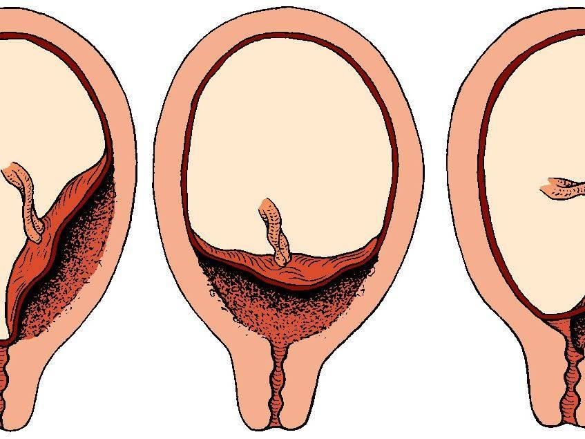 Низкая плацентация: каждый миллиметр на счету - наблюдение беременности.  здоровье