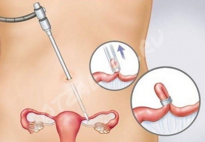 Какие могут быть последствия, если перевязать маточные трубы?