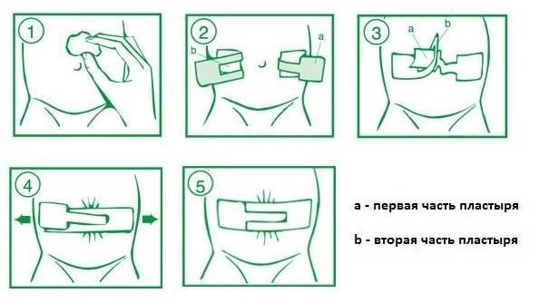 Как заклеить пластырем пупочную грыжу у ребенка