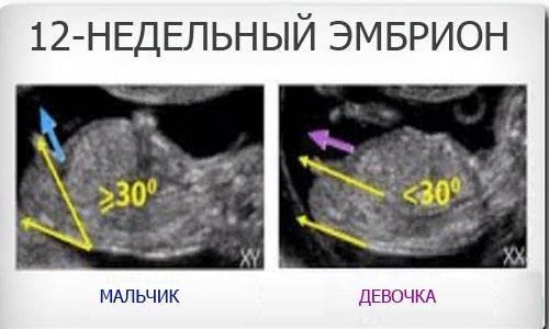 Проверенные признаки беременности девочкой на ранних сроках