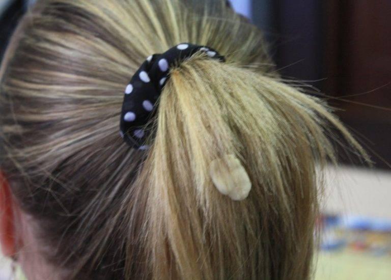 Жвачку с волос убираем быстро и просто: способы удаления и варианты выведения жевательной резинки в домашних условиях