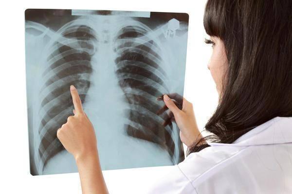 Рентген при грудном вскармливании: можно ли делать кормящей маме, кормить грудью впоследствии