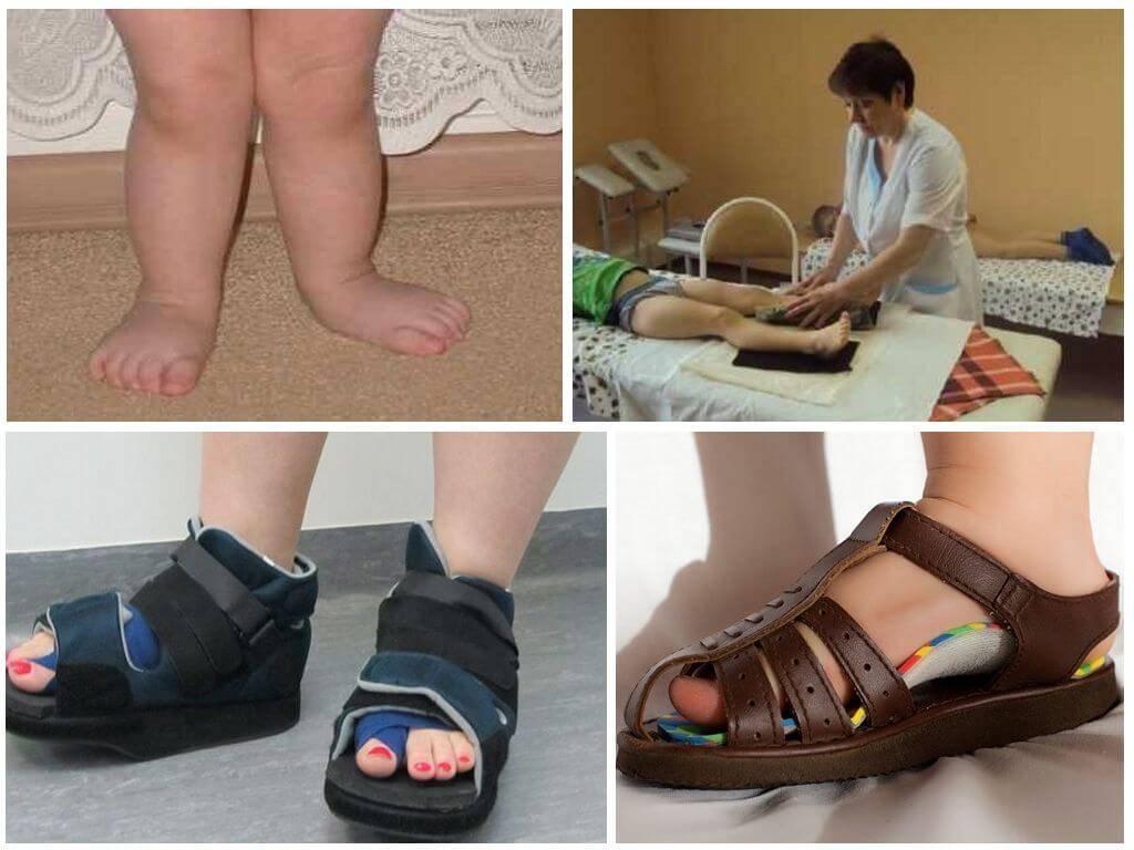 Вальгусное искривление ног у ребенка: причины и лечение   детская поликлиника
